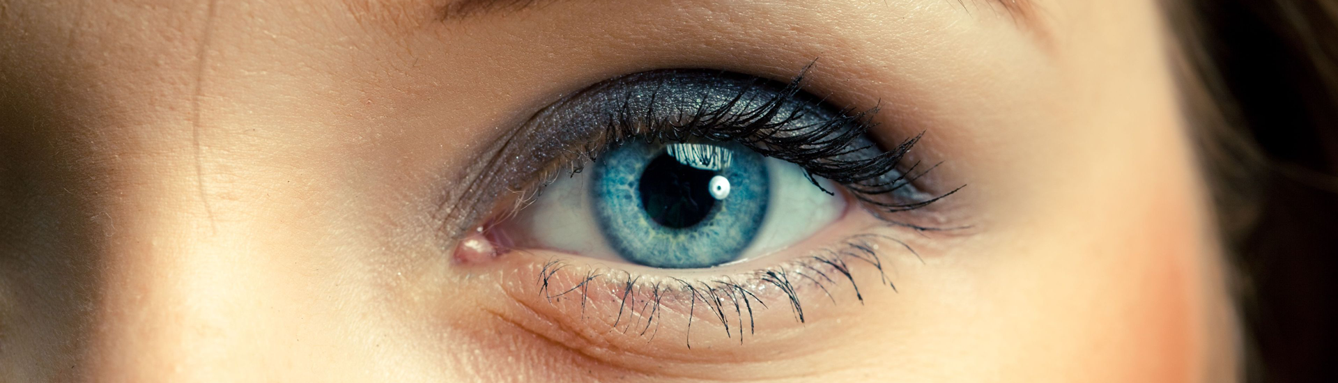 What are the most common eye injuries?